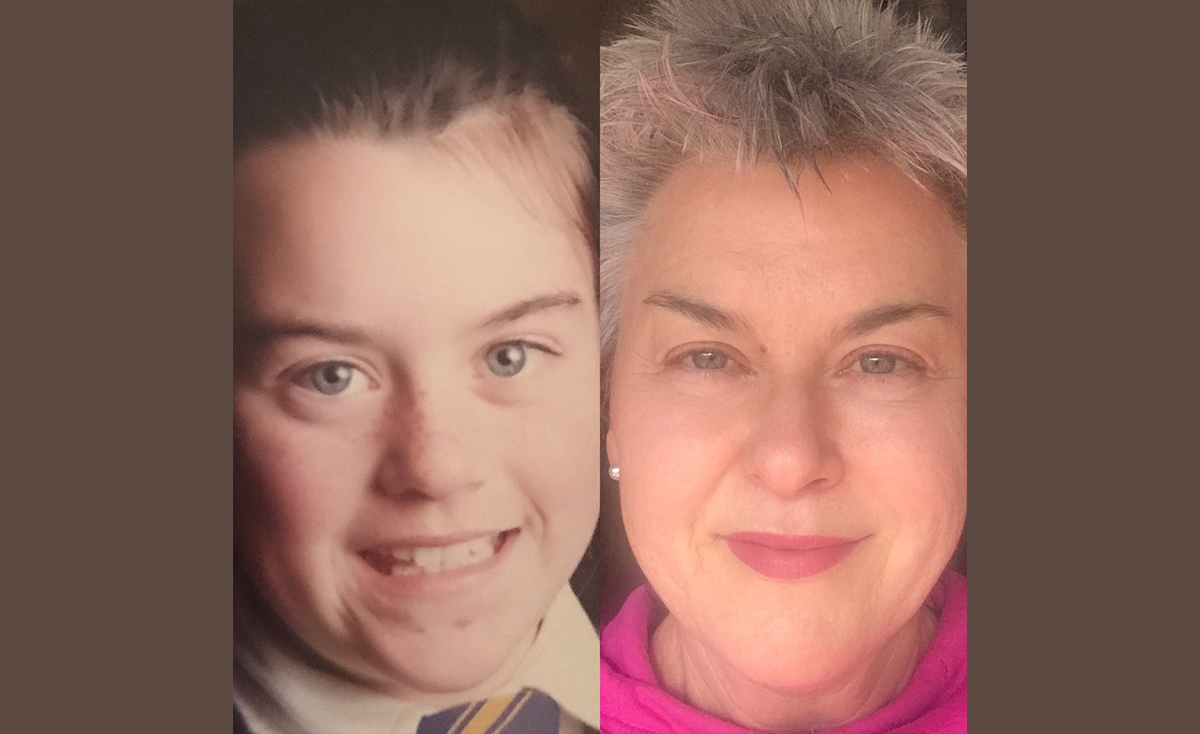 """My 45 Year Skin Journey and the """"Why"""" of Science Skincare"""